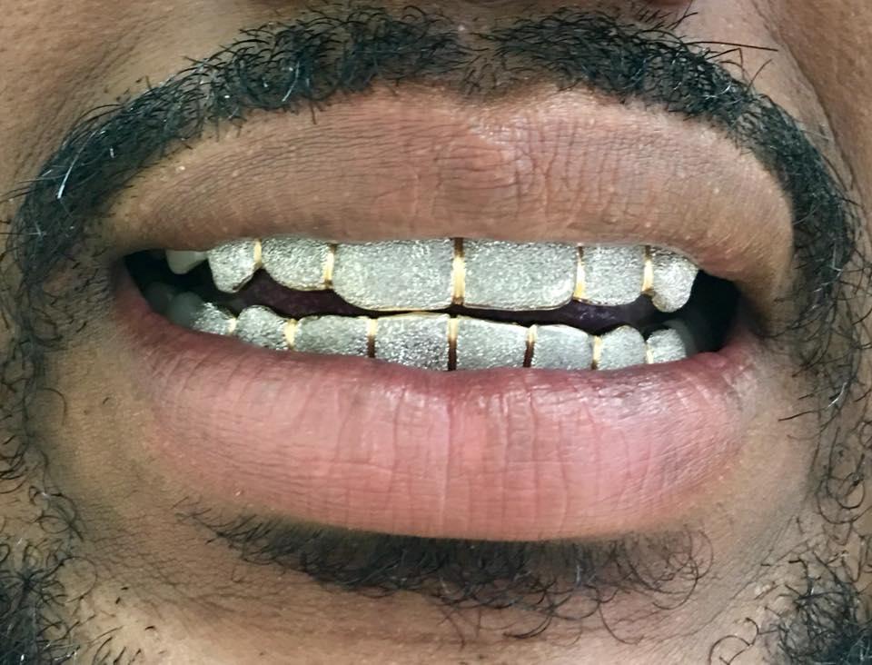 Custom Grillz | Gold Grillz | Diamond Grillz | Custom Jewelry