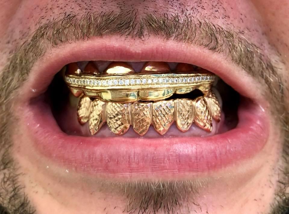 Custom Grillz   Gold Grillz   Diamond Grillz   Custom Jewelry
